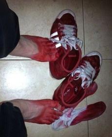 艹 这什么烂鞋啊 进点水就掉色成这样?!伤不起……